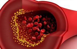 Očista cév a žil – krok sedmý