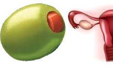 olivy1